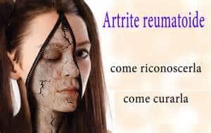 A Milano corso sulla riabilitazione nelle persone affette da artrite reumatoide
