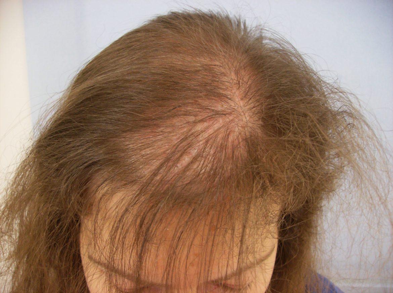 Alopecia: la risposta è nei fattori di crescita rilasciati dalle staminali