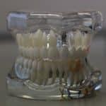 """Protesi dentali: la tua ce l'ha il """"passaporto""""? I consigli di AIOP per tutelarsi da quelle fasulle"""