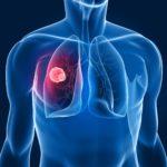 L'Ospedale Policlinico di Milano all'avanguardia nella gestione multidisciplinare del tumore al polmone