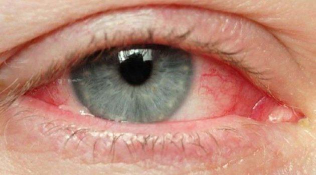 Giornata mondiale della vista: curare l'occhio secco per evitare problemi più seri