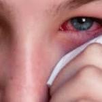 Collirio antiallergico senza conservanti Thea Farma, per combattere le allergie congiuntivali primaverili