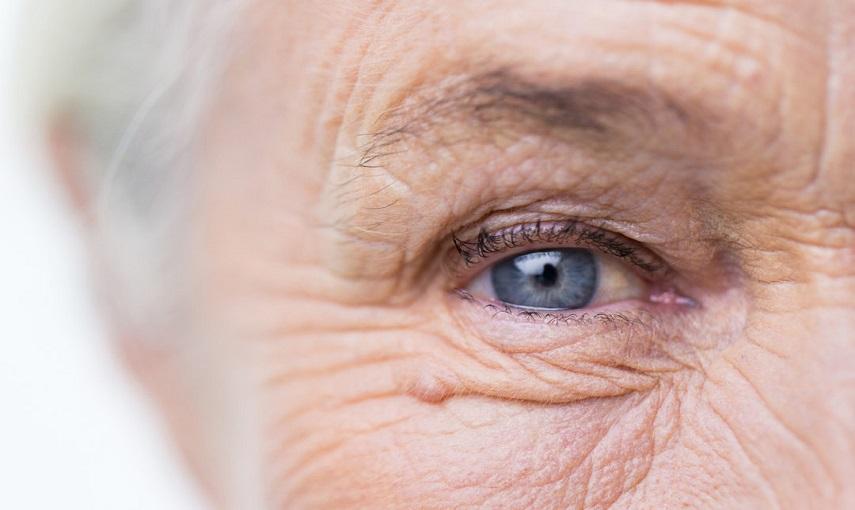 Cosa e' la Maculopatia senile